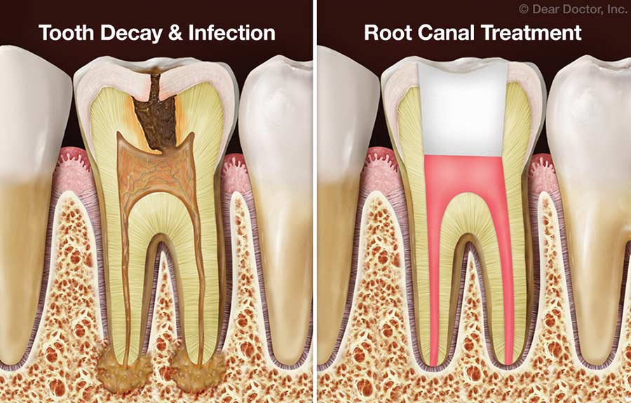Finding the right dentist for your root canal treatment